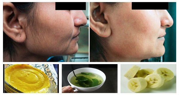 Get Rid Of Facial Hair Forever! 100% Natural Home Remedies!