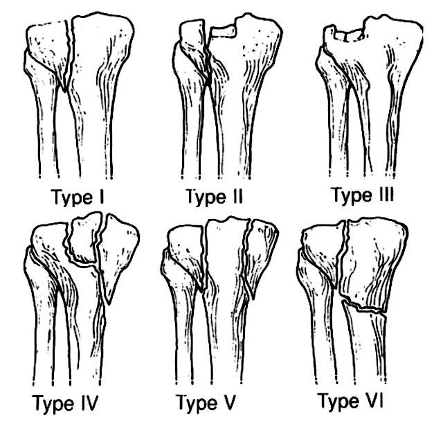 好痛痛 脛骨平台骨折 骨折類型 六型