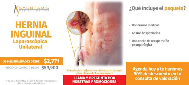Cirugia de Hernia Inguinal Laparoscopica en Guadalajara
