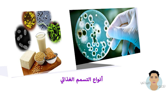 أنواع التسمم الغذائي