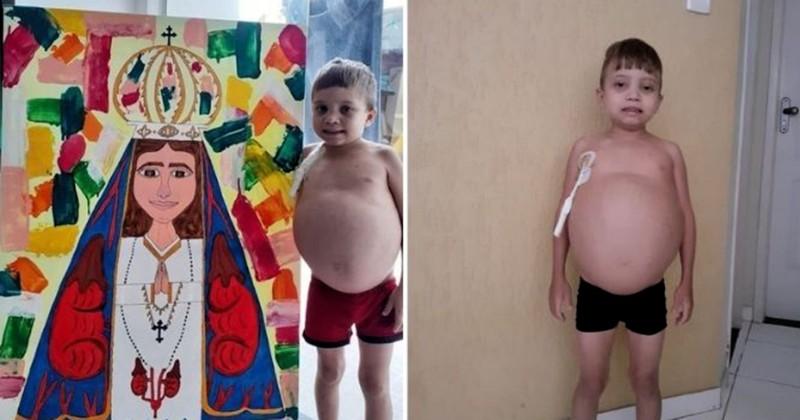 Anak yang Melukis Gambar Kudus untuk Biaya Pengobatan Meninggal Dunia