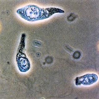 idrarda-transizyonel-hucreler