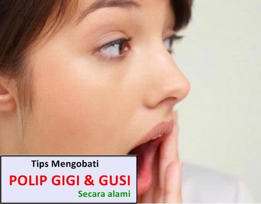 Cara Menghilangkan Polip Di Gigi Dan Gusi Secara Alami