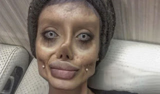 Mujer iraní se sometió a 50 cirugías para parecerse a Angelina Jolie y terminó pareciendose a un zombie
