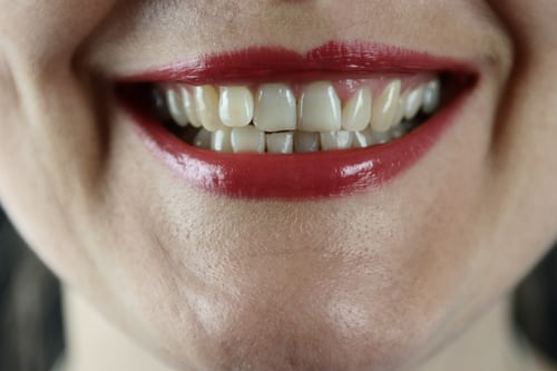 Teeth Stains Treatment: Main Causes and ItsTreatment Procedure