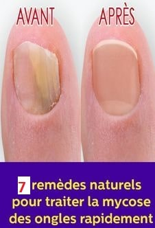 Mycose des ongles : top 7 traitements naturels.