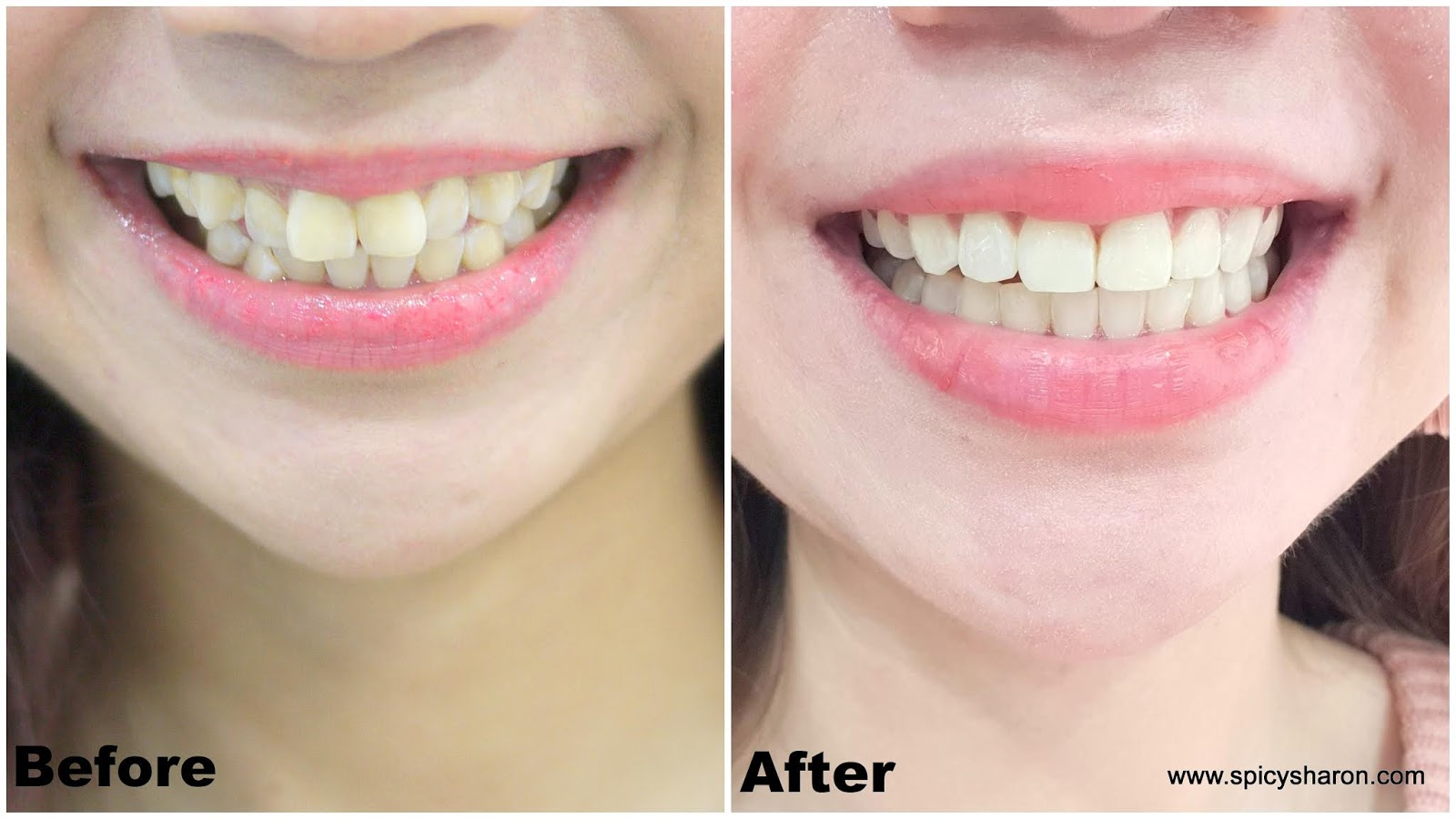 32 pearls dental clinic in PJ and KL
