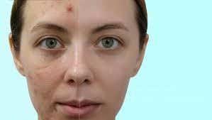 cara mengatasi tekstur kulit wajah yang tidak rata