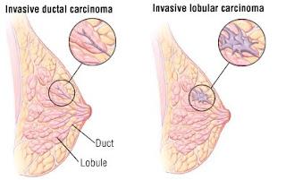 اهم 7 علامات تؤكد سرطان الثدي