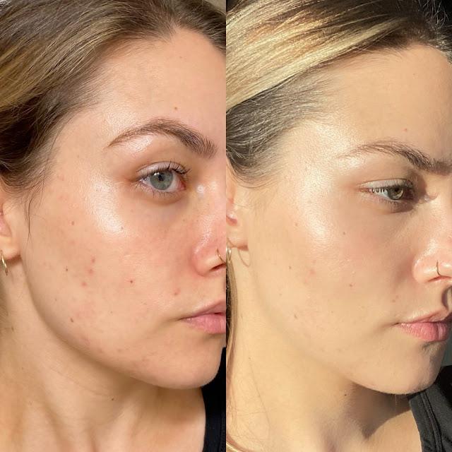 DIY Oleogel pour peaux matures : Dîtes adieux à la peau luisante et pleine d'imperfections