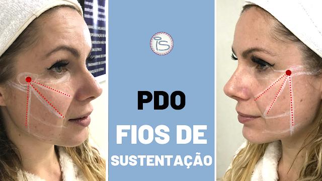 FIOS DE SUSTENTAÇÃO ANTES E DEPOIS
