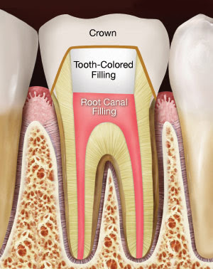 crown on root canal treated tooth