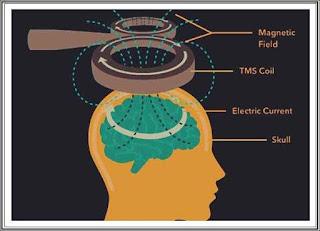 Terapia cu stimulare magnetica transcraniana pareri beneficii cum functioneaza