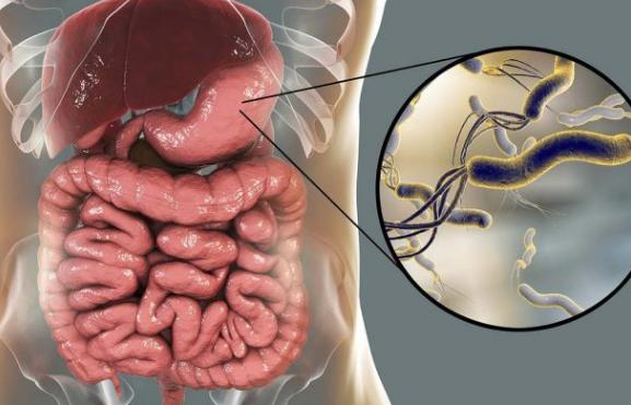 Prirodni lijekovi koji se preporučuju protiv heliko bakterije (Helicobacter pylori)