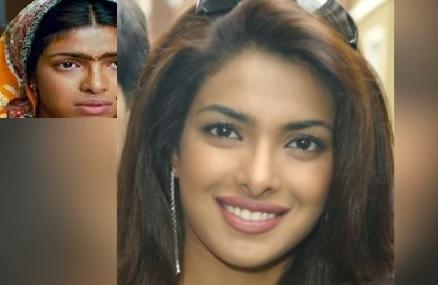 bollywood, priyanka chopra, plastic surgery