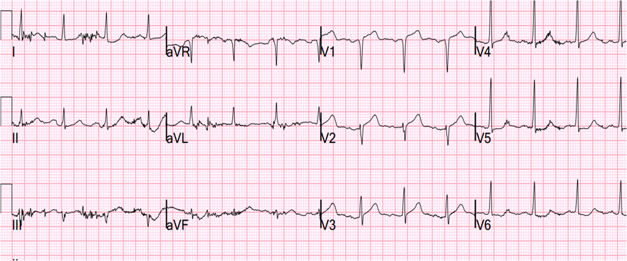 Dr. Smith's ECG Blog: Septal STEMI with lateral ST ...