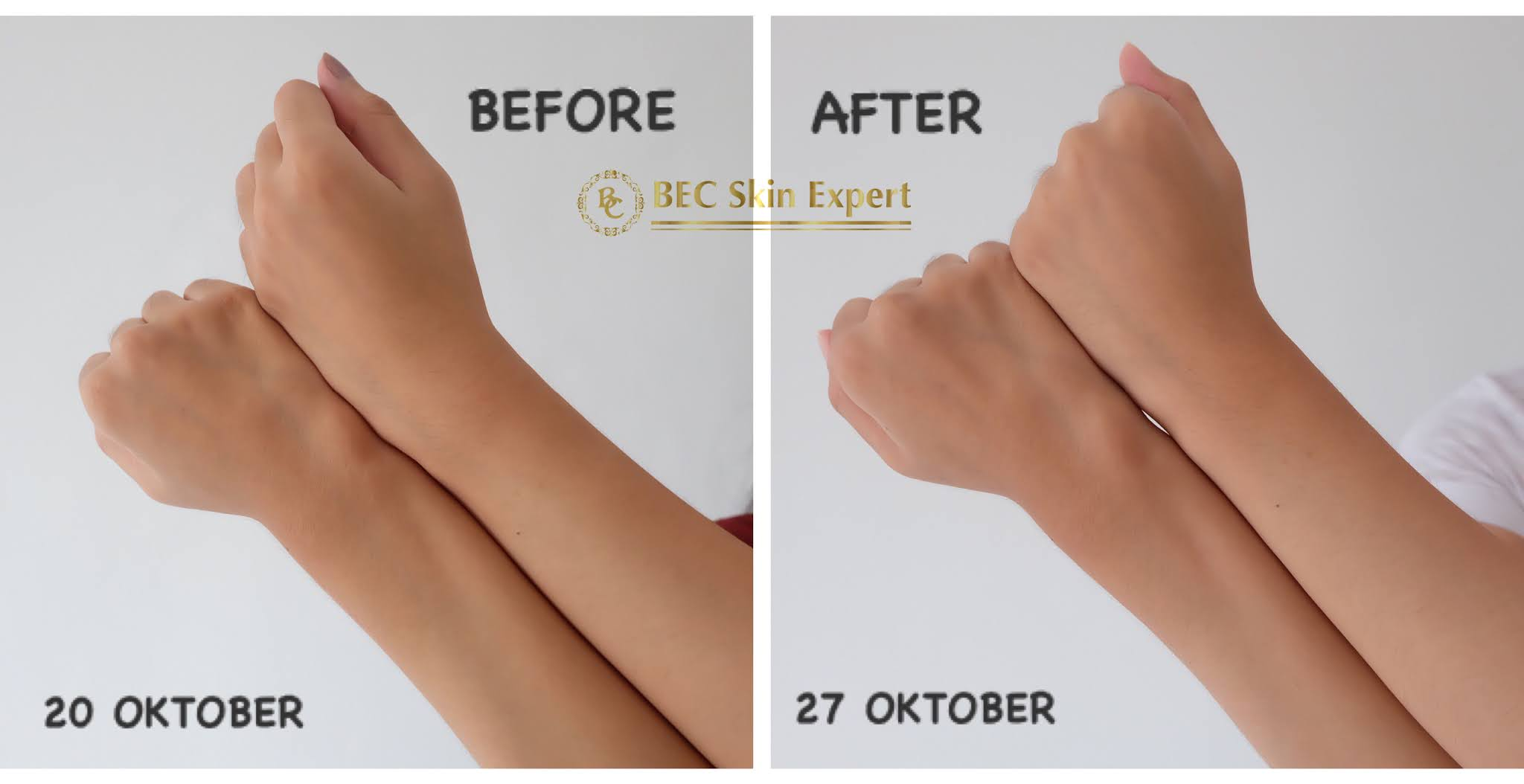 Before After Penggunaan BEC Skin Expert