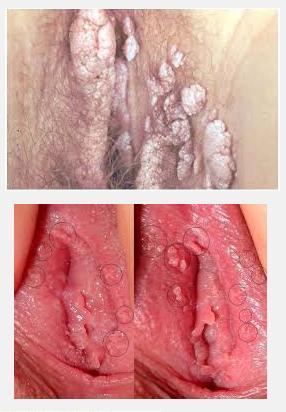 Hpv vaginal birth