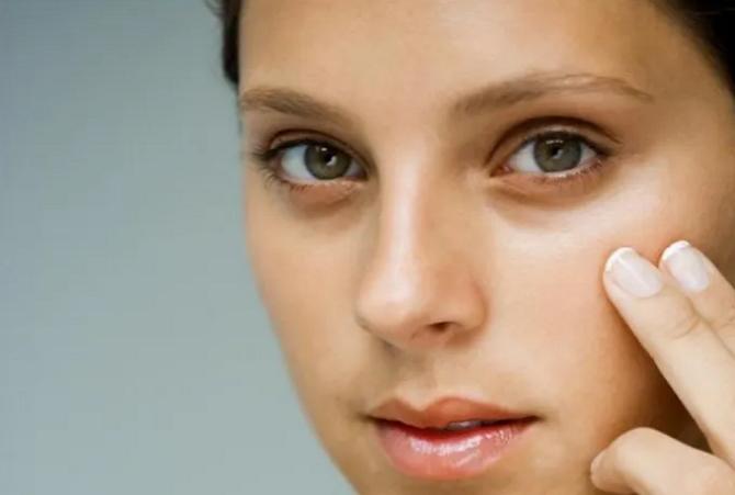Cara Mengatasi Kelopak Mata yang Hitam, Mudah dan Aman