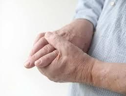 Untuk Mencegah Penyakit Asam Urat, Apa Nama Obat Tradisional Asam Urat?, Definisi Penyakit Atau Pengobatan Asam Urat