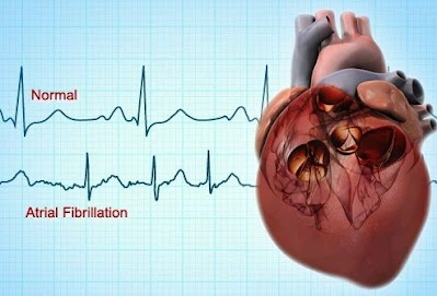atrial fibrillation causes treatment