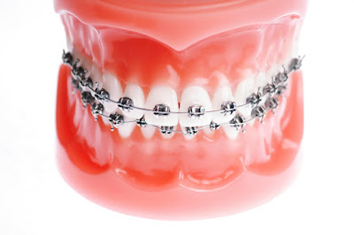 honolulu braces