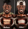 Peter Okoye apologizes to ladies he has kissed after fixing his teeth and undergoing teeth whitening