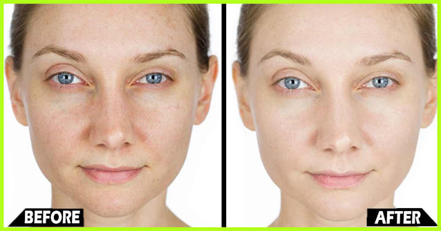 5 recettes beauté pour hydrater la peau sèche des différentes parties du corps