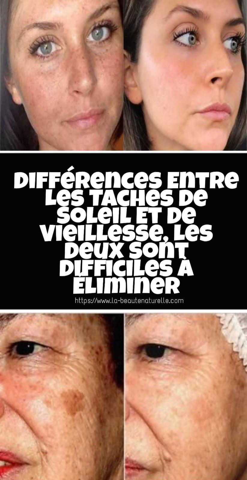 Différences Entre Les Taches De Soleil Et De Vieillesse, Les Deux Sont Difficiles À Éliminer