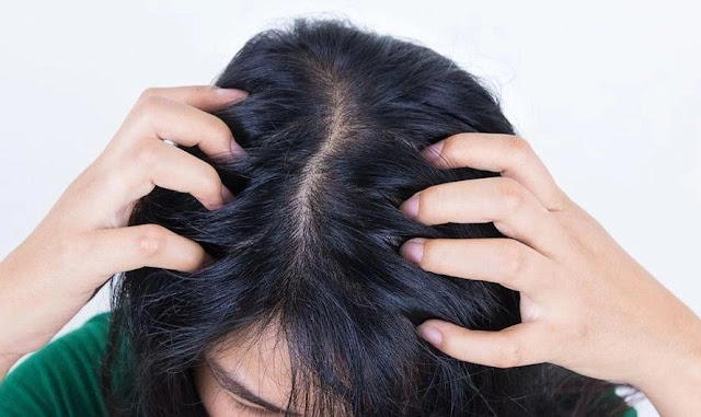 Tips Ampuh Untuk Merawat Kulit Kepala Kering
