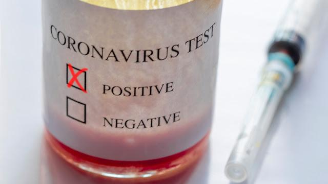 المهدية : تسجيل 17 إصابة جديدة بفيروس كورونا