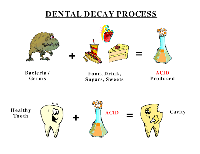Dental Decay Process
