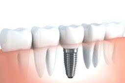 Ketahui Macam Jenis Gigi Palsu Atau Tiruan Yang Bisa Anda Pilih