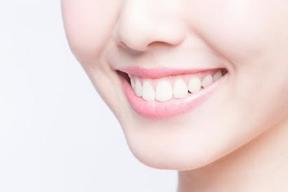 Pengen Gigi Terlihat Putih? Yuk Simak Tips Berikut