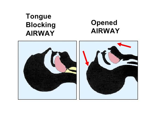 Such types of obstructions in breathing can exist for 10-30 sec and above. In case of severe sleep apnea, these cessations in breathing can exceed 400 every night. There are people who are so overwhelmed by this disease that they receive sleep apnea attacks every 30 sec every night.