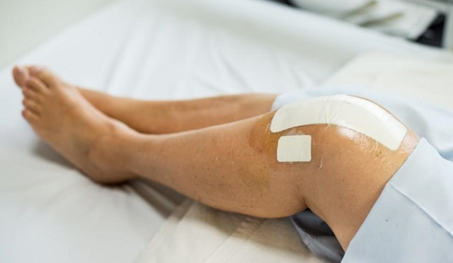 total knee replacement surgery fix joint