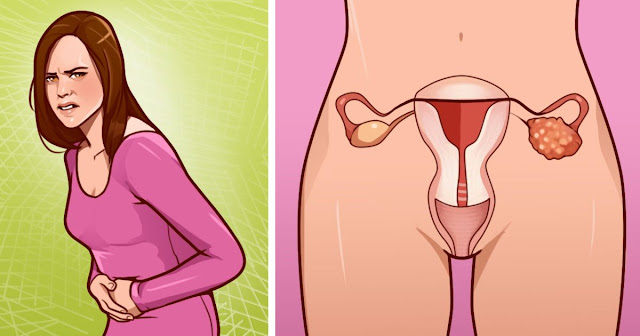 13 Ovarian Cancer Warning Signs Every Woman Should Never Ignore