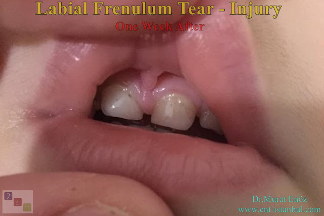 Upper Lip Tie Injury, Liabial Frenulum Tear,