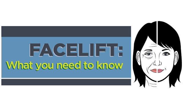 Facelift-What-You-Need-To-Know #Infographic