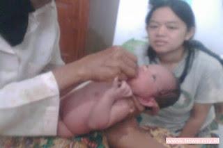 Obat bayi alternatif