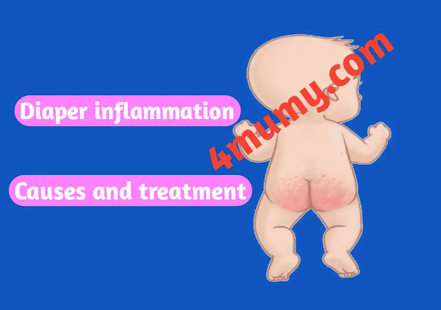 Baby Diaper inflammation