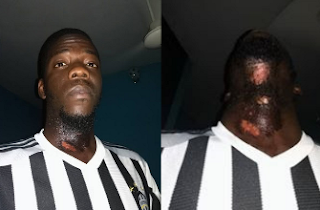 Man shares photos of Burns he suffered after using Aftershave with Fake Expiry Date