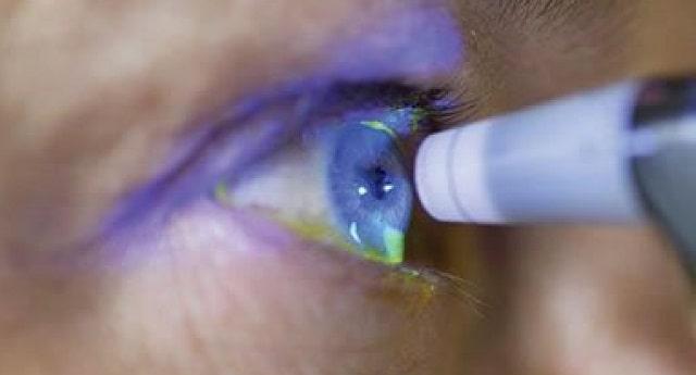 glaucoma causes symptoms eye diagnosis