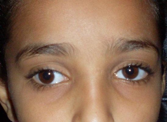 انحراف العين البسيط