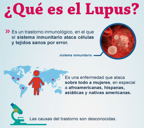 que es el lupus