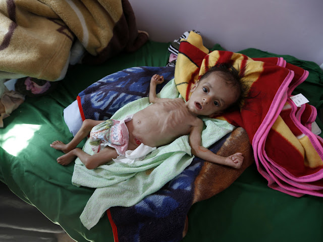A malnourished Yemeni child receives treatment at a hospital in the capital Sanaa
