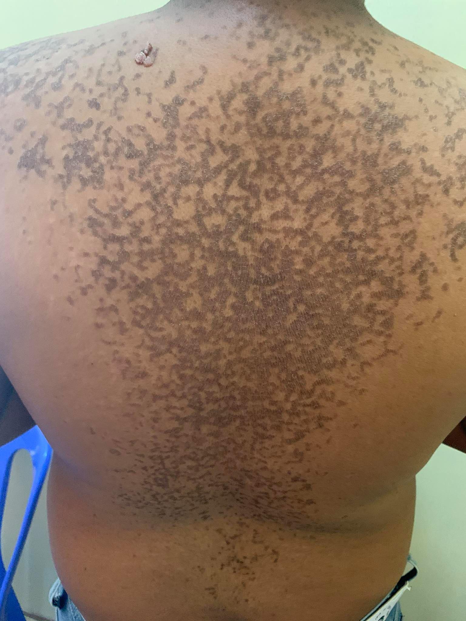 papilomatosis piel humana