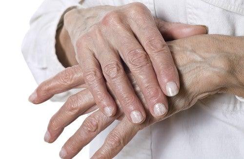 Cách trị da khô nứt lẻ hiệu quả nhất