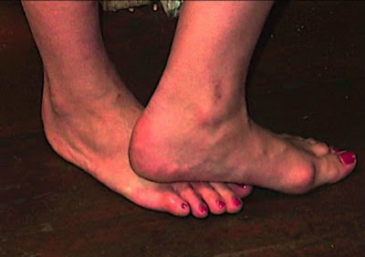Ways to get rid of bunions fast (without surgery)