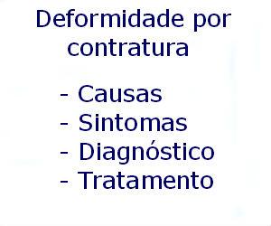 Deformidade por contratura causas sintomas diagnóstico tratamento prevenção